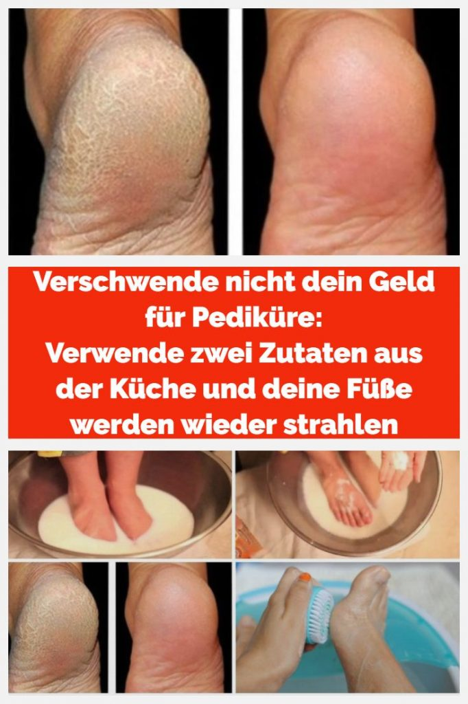 Do not waste your money on pedicures: use two ingredients from the kitchen
