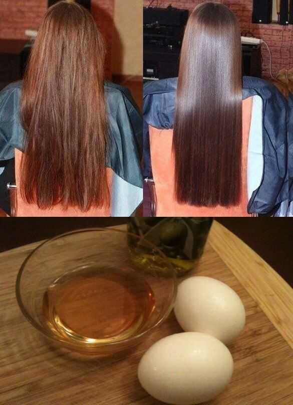 Thanks to these remedies you will have super-long hair in weeks - egg, honey and ...