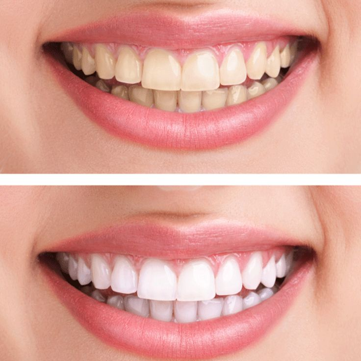 """This home remedy makes your teeth whiter - """"whiter teeth without expensive beau ..."""